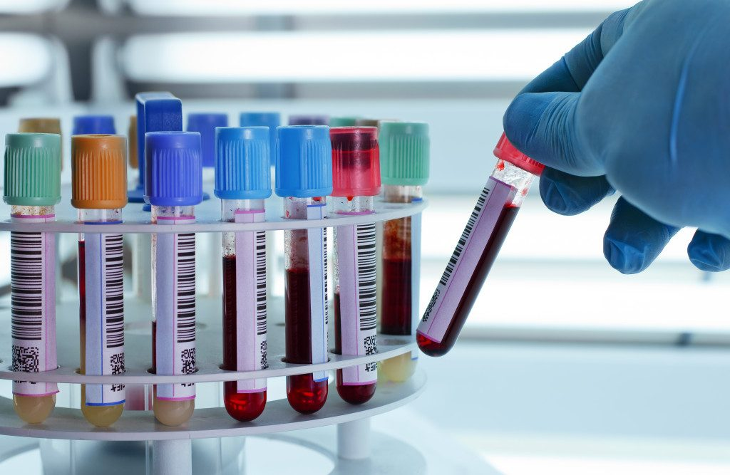 Lab Services for blood test